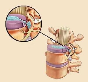 Первая помощь при болях в пояснице отдающая в ногу