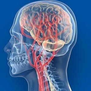Атеросклероз коронарных артерий 3 степени