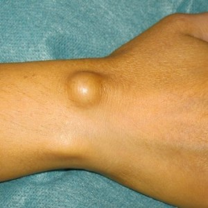 Гигрома - лечение образования народными средствами, отзывы людей