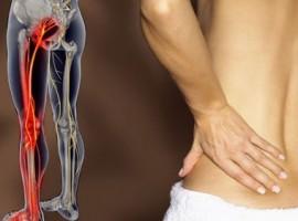 Симптомы ишиаса и методы лечения воспаления седалищного нерва в домашних условиях.