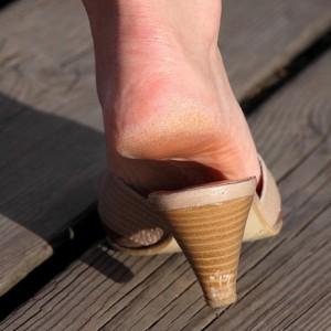 Натоптыши на ступнях и подошве ног, лечение и быстрое избавление в домашних условиях народными рецептами