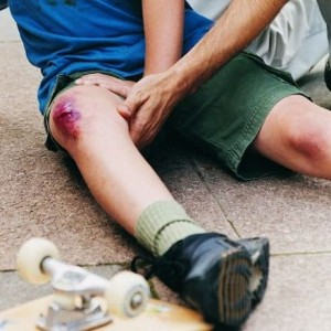 Ушиб колена при падении, лечение травмы в домашних условиях.