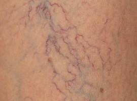 Лечение варикоза вен на ногах народными и медицинскими средствами.