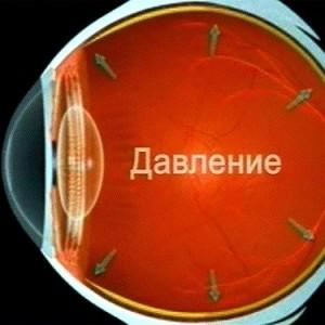 Цены на лазерную коррекцию зрения эксимер