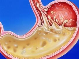 Симптомы и причины повышенной кислотности желудка. Лечение народными средствами и правильный рацион питания.