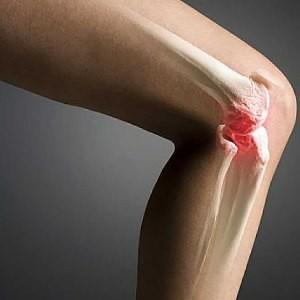 Лечение артрита суставов пальцев рук прополисом
