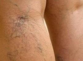 Способы лечение варикозного расширения вен на ногах в домашних условиях, предотвращение заболевания.