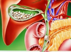 Симптомы возникновения хронического холецистита. Лечение болезни диетой и народными средствами.