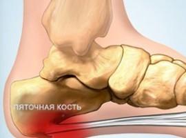 Шпоры в ноге — как проводить лечение в домашних условиях.