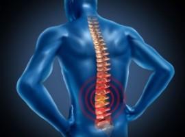 Обсуждаем поясничный остеохондроз. Основные симптомы и лечение в домашних условиях.