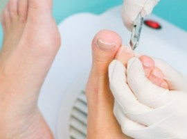 Обсуждаем такую проблему, как вросший ноготь на ноге. Особенности лечения в домашних условиях.