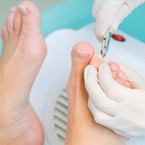 Вросший ноготь на ноге лечение в домашних условиях
