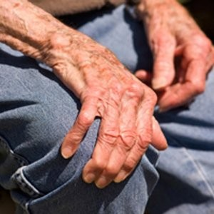 Что такое болезнь Паркинсона — общее понятие
