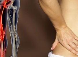 Что такое защемление седалищного нерва — как осуществляется его лечение в домашних условиях и каковы симптомы недуга?