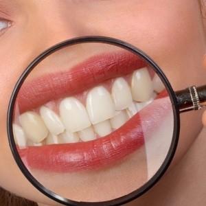 Правильное лечение зубного кариеса