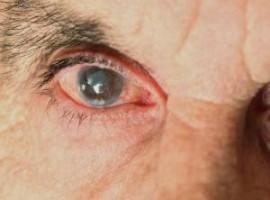 Что такое катаракта глаза и как осуществляется ее лечение народными средствами без проведения операции.  Отзывы вылечившихся.