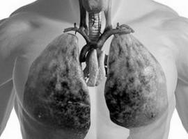 Что такое рак легких и возможно ли его лечение средствами народной медицины? Несколько советов.